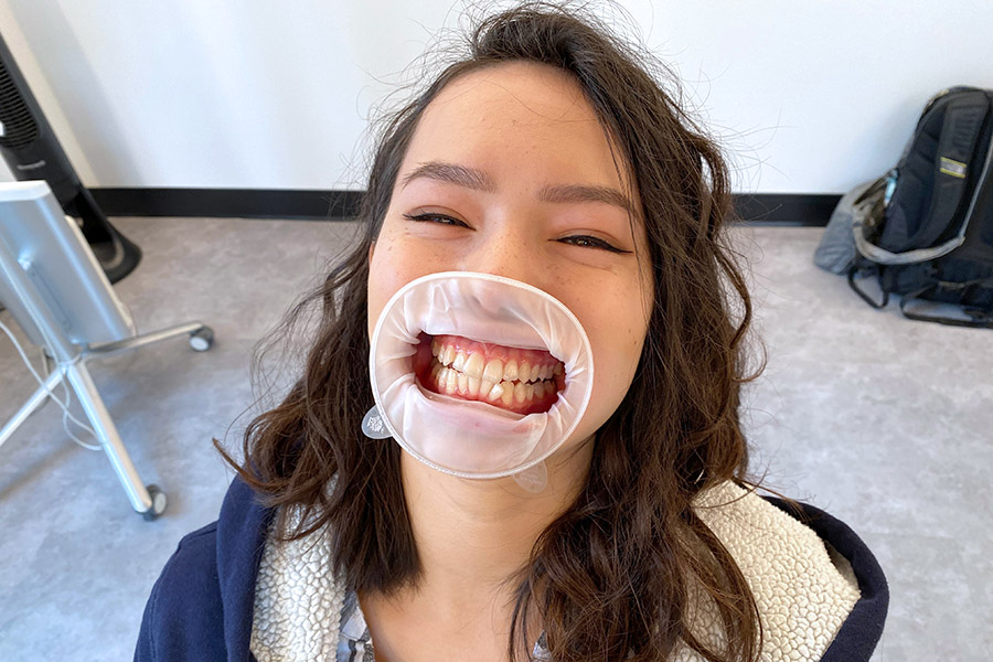 Braces Alternative Clear Aligners with Uniform Teeth San Francisco mouth guard